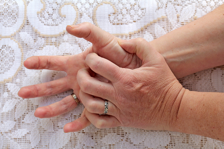 Strongly trembling hands in seniors. A woman with Parkinson's disease has her hands shaking