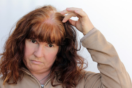 A woman has problems with hair loss and a sensitive scalp. Menopausal hair loss Archivio Fotografico