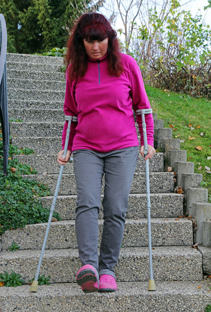Climbing stairs with crutches is dangerous. A woman walking down a staircase with crutches Stock Photo