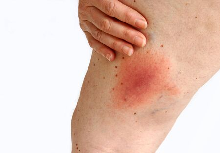 Wandering Flush Lyme borreliosis. Lyme disease caused by a tick on the thigh.