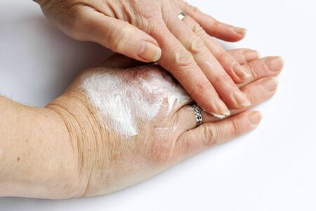 A woman rubs her hands with an ointment of pain. Hand cream against dry skin Фото со стока - 134269847