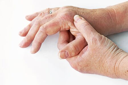 A woman has pain in her hands and fingers suffers from dry skin