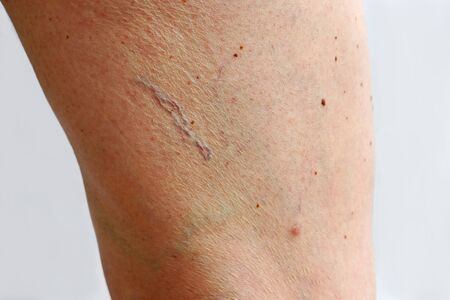 Spider veins, varicose veins and cellulite on a woman's leg