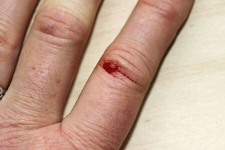 A bleeding injury on a woman's finger. A bleeding wound on the hand
