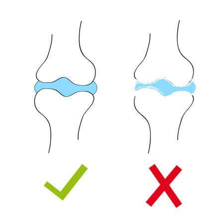Joint with cartilage and arthritis.Vector illustration.