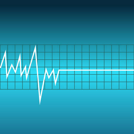 Ecg graph on blue background. Vector illustartion.