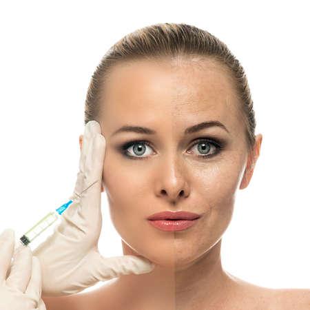 Kosmetische injectie aan het mooie mooie vrouw gezicht en schoonheidsspecialiste handen met spuit gezicht van de jonge vrouw voor en na de procedure geïsoleerd op de witte achtergrond