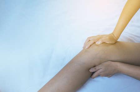 Varicose veins on the womans leg