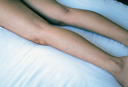 Varicose veins on the womans leg or foot,Body and health care concept,Selective focus Stock Photo