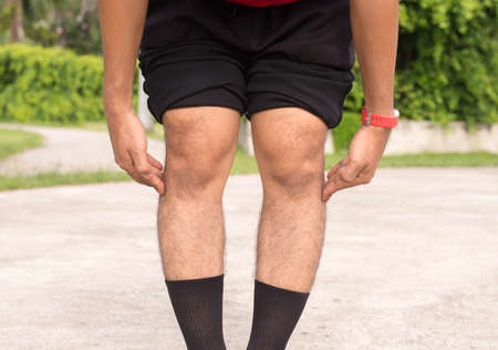 Asian man leg bandy-legged shape of the legs