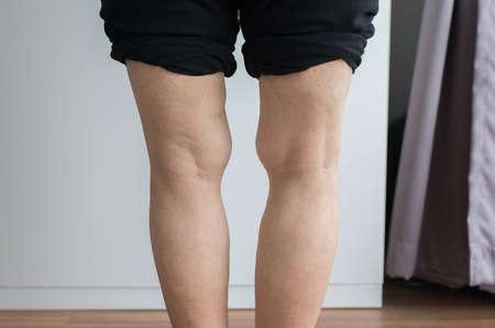 Asian elderly woman leg bandy-legged shape of the body