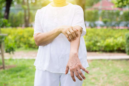Senior asian woman with rash or papule and scratchon her arm from allergies,Health allergy skin care problem