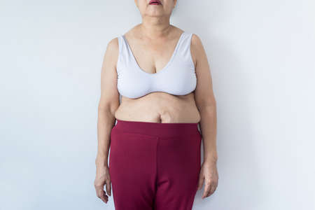 Overweight senior woman pinching her fat body,Cellulite around her belly button,Bloated belly,Healthy lifestyle concept,Copy space for text on white background