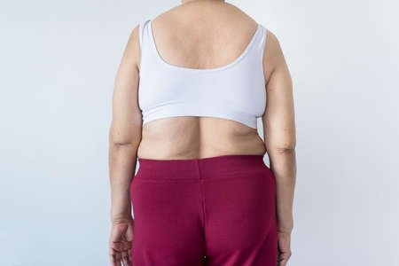 Overweight senior woman pinching her fat body,Cellulite around her back,Healthy lifestyle concept