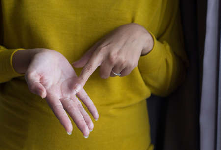 Woman with hand removes flaky skin,Health care skin concept,Close up