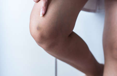 Bruise on woman leg skin,Healthy skin body care concept,Copy space for text on white background 写真素材