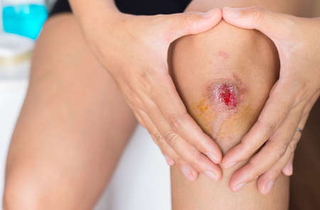 Woman suffering from bleeding wound on her knee,Scab becomes Infected