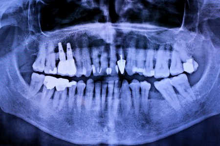 Details with a stomatological radiography (x-ray) with teeth implants Stock Photo