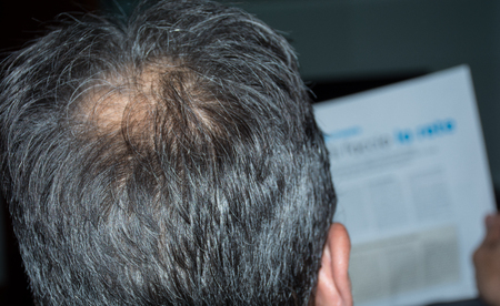 he old: Mature man, seen from behind, in the head, begins to lose hair, he begins to be old.