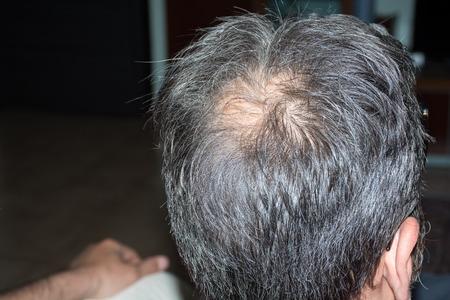 hair blacks: Mature man, seen from behind, in the head, begins to lose hair, he begins to be old.