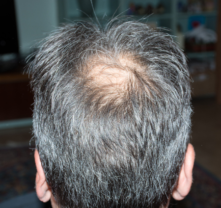 grays: Mature man, seen from behind, in the head, begins to lose hair, he begins to be old.