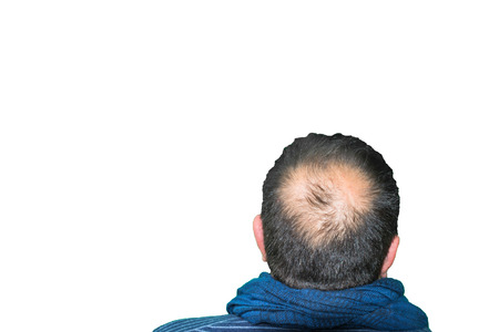 receding hairline: Yang mature man, seen from behind, in the head, begins to lose hair, he begins to be old. Stock Photo