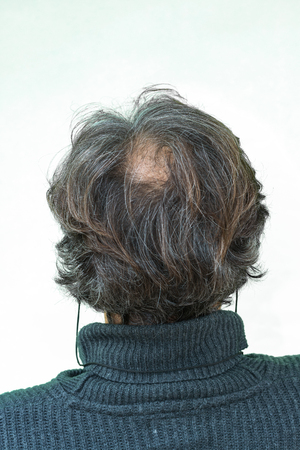 receding hairline: Mature yang man, seen from behind, in the head, begins to lose hair, he begins to be old.