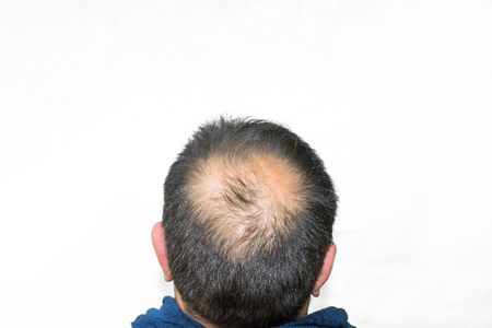 grays: Mature yang man, seen from behind, in the head, begins to lose hair, he begins to be old.