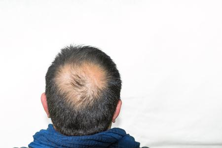 hair blacks: Mature yang man, seen from behind, in the head, begins to lose hair, he begins to be old.