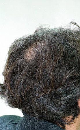 he old: Mature yang man, seen from behind, in the head, begins to lose hair, he begins to be old.