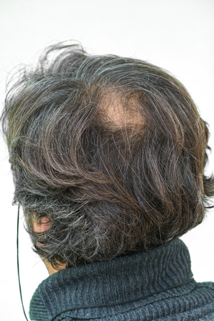 calvicie: El hombre maduro yang, visto desde atrás, en la cabeza, empieza a perder el pelo, empieza a ser viejo.