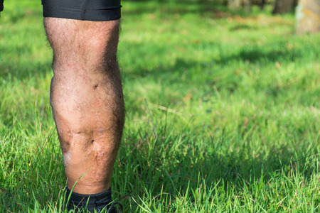 Old scar of leg injury, from car or motorbike accident, deep tissue scar , hairless man leg, calf injury , large scar on right hand calf. The scars as wounds, leave a mark on the skin. Work accident.