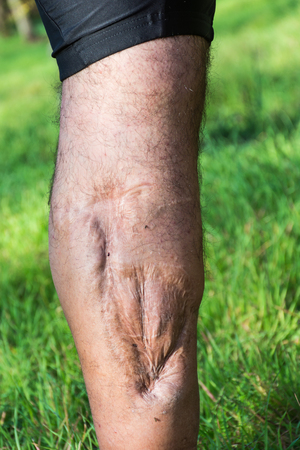 scarred: Old scar of leg injury, from car or motorbike accident, deep tissue scar , hairless man leg, calf injury , large scar on right hand calf. The scars as wounds, leave a mark on the skin. Work accident.