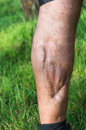 lesions: Old scar of leg injury, from car or motorbike accident, deep tissue scar , hairless man leg, calf injury , large scar on right hand calf. The scars as wounds, leave a mark on the skin. Work accident.