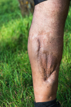 leg calf injury: Old scar of leg injury, from car or motorbike accident, deep tissue scar , hairless man leg, calf injury , large scar on right hand calf. The scars as wounds, leave a mark on the skin. Work accident.