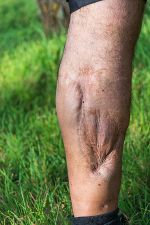 the lesions: Old scar of leg injury, from car or motorbike accident, deep tissue scar , hairless man leg, calf injury , large scar on right hand calf. The scars as wounds, leave a mark on the skin. Work accident.