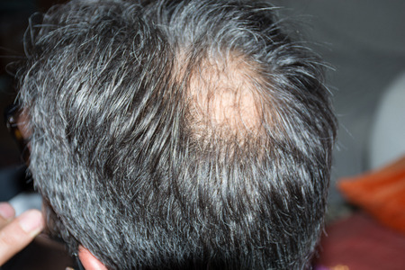 Mature man, seen from behind, in the head, begins to lose hair, he begins to be old.