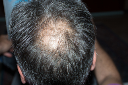 he: Mature man, seen from behind, in the head, begins to lose hair, he begins to be old.