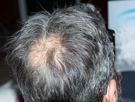 calvicie: Hombre maduro, visto desde atrás, en la cabeza, empieza a perder pelo, empieza a ser viejo.