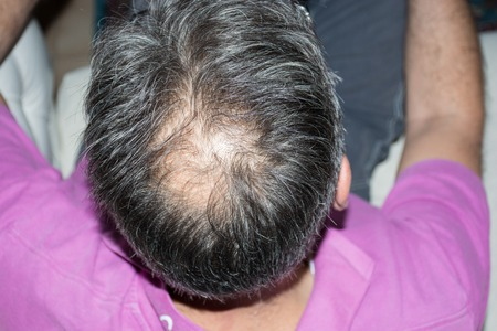 calvicie: Mature man, seen from behind, in the head, begins to lose hair, he begins to be old.