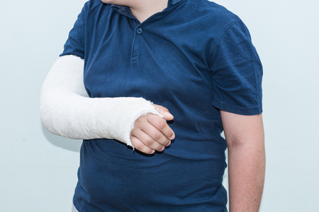 Boy with broken arm, plaster on arm as therapy. Close up of a young mans white long arm plaster  fiberglass cast covering the wrist, arm, and elbow after an skating accident.