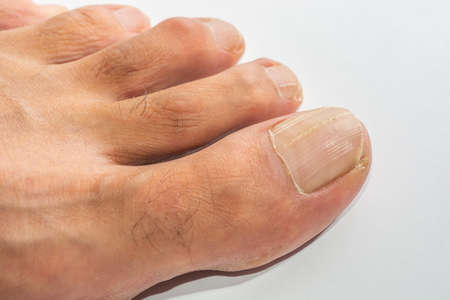 Abstract and conceptual onychomycosis, striped nail or longitudinal lines. All fingers and toes with infection, on a white background.
