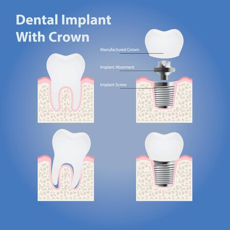 Dental implant with crown and healthy tooth. anatomy