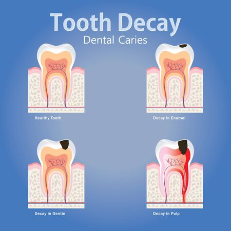 Stages of tooth decay, Dental Caries anatomy concept with healthy tooth