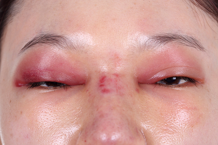 upper eye lid and nose swell after nose job plastic surgery Archivio Fotografico