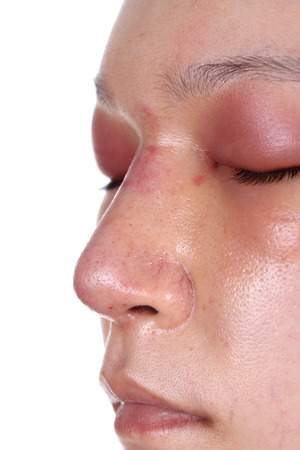 sinusitis: close-up nose and eye swelll after nose job plastic surgery
