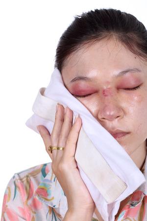 mujer golpeada: La mujer sostiene una bolsa de hielo despu�s de la cirug�a pl�stica de nariz