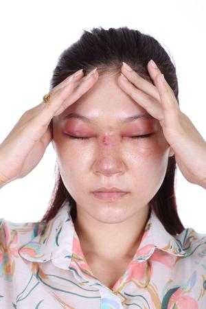 violencia intrafamiliar: mujer con la nariz y swelll ojo después de la cirugía plástica de nariz
