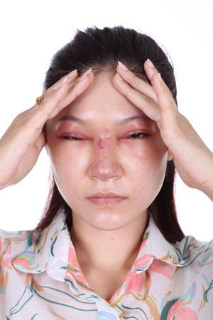 mujer golpeada: mujer con la nariz y swelll ojo después de la cirugía plástica de nariz