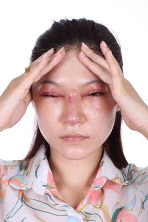 woman with nose and eye swelll after nose job plastic surgery photo